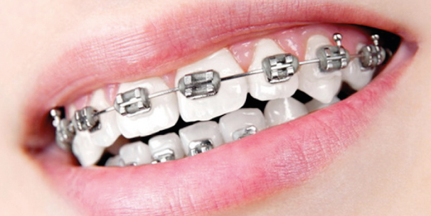 Fixed-Braces-copy