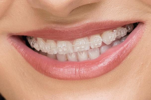 fixed-braces-image