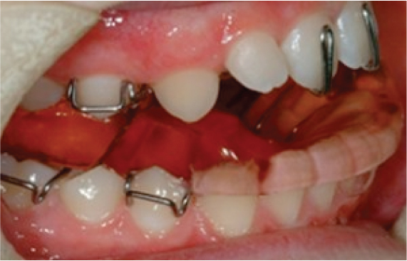 Functional-braces-2